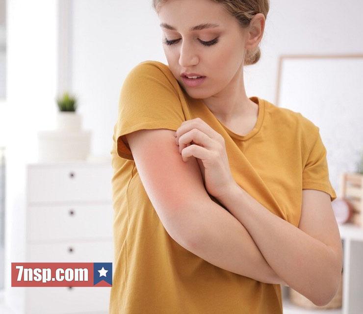 Симптомы поллиноза, аллергии лечение взрослых, препараты, бад НСП